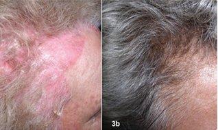 Trước và sau chữa bệnh vảy nến da đầu